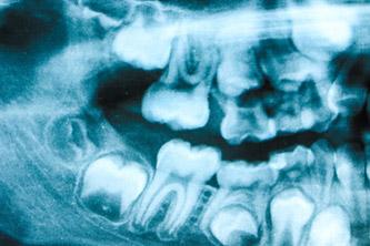 """10代後半から20代前半に生えてくる人が多く、別名""""18歳臼歯""""と呼ばれます。"""