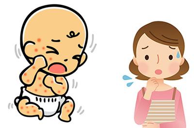 乳児湿疹っていつまで出るの?原因を知って上手に対策しよう!